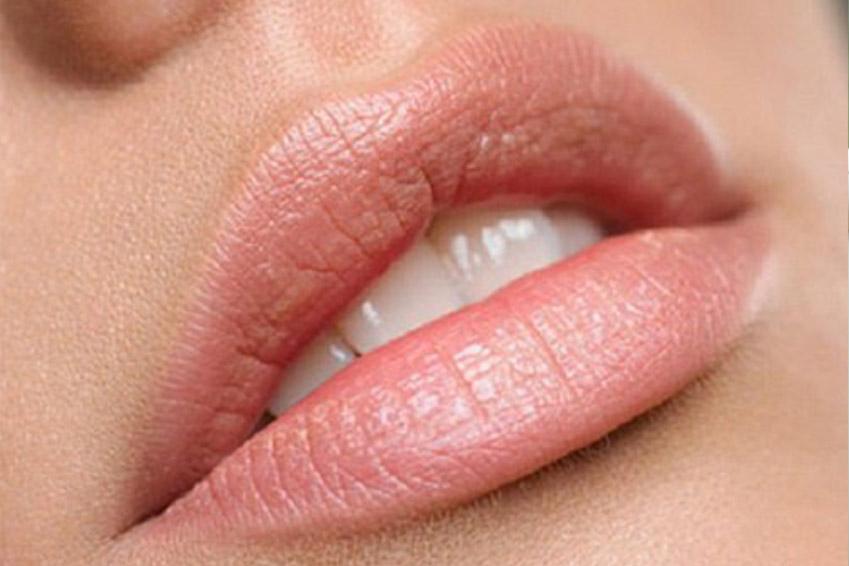 Acide hyaluronique lèvres